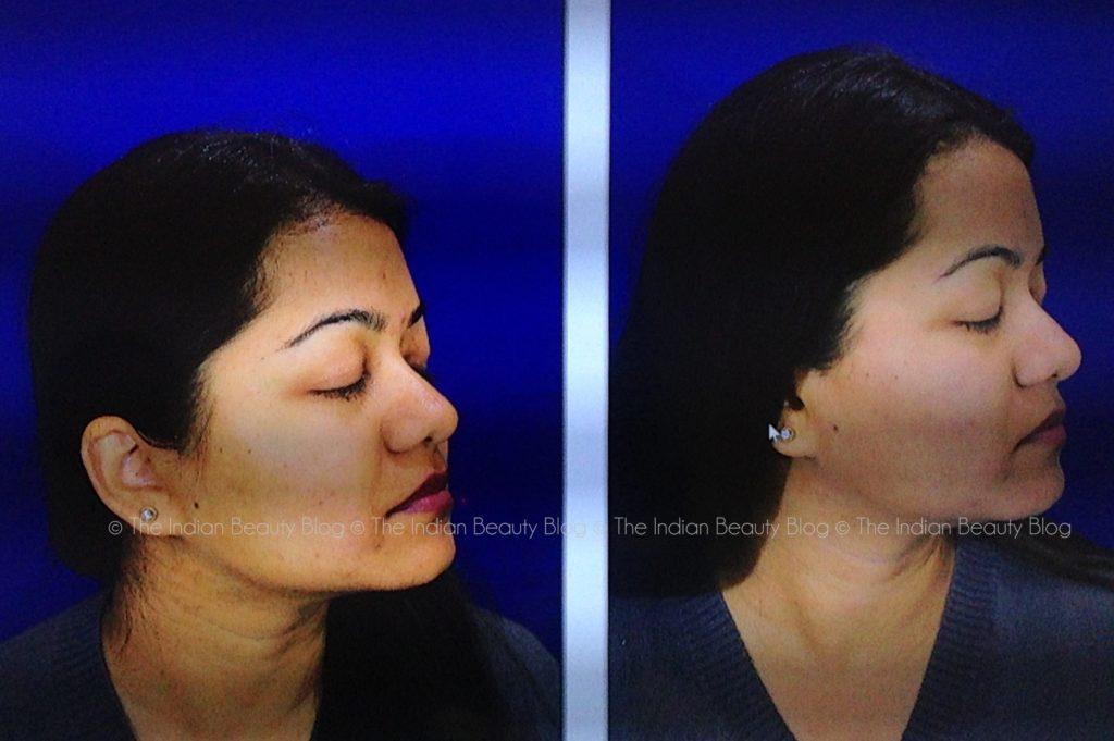 lumiere dermatology dr kiran lohia review